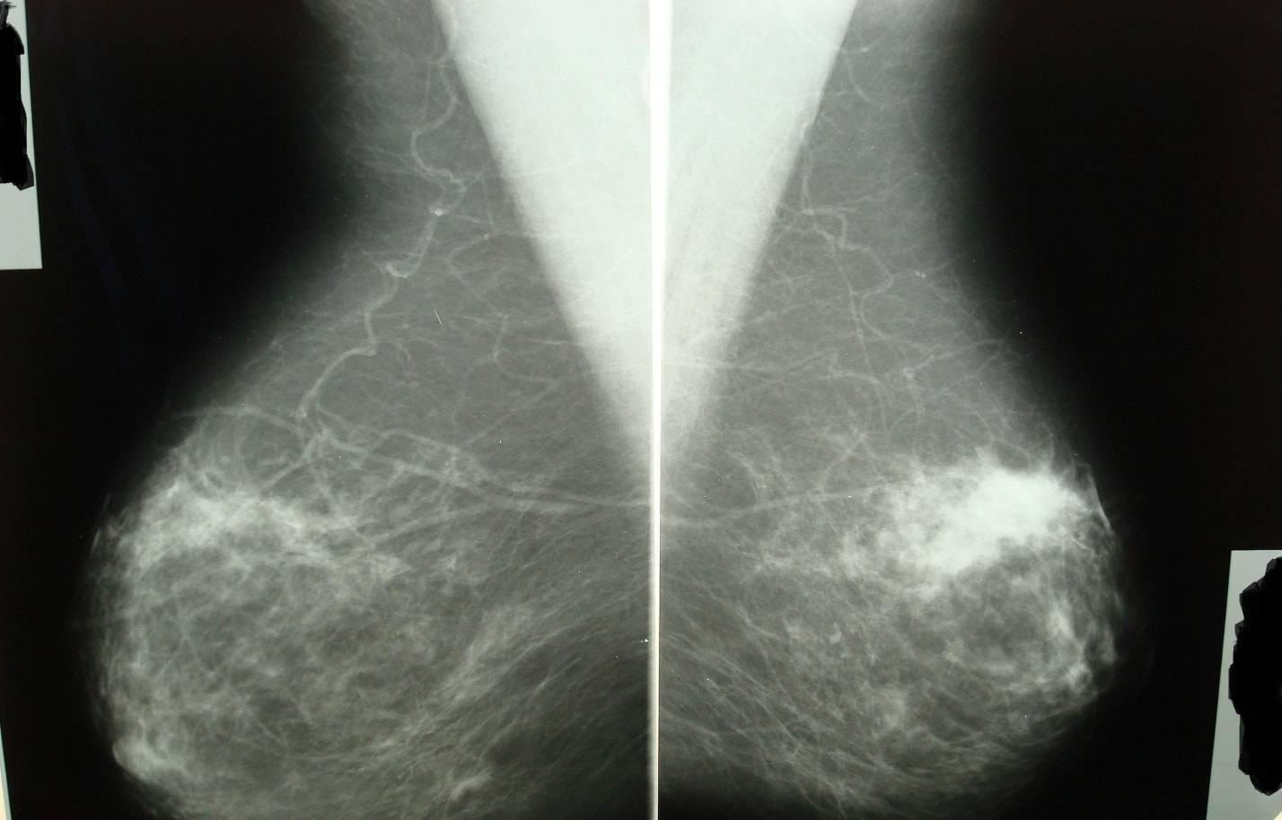 Признаки фиброзной мастопатии, лечение, диета и народные средства