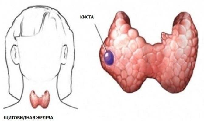 Узлы на щитовидной железе: причины, симптомы, методы лечения