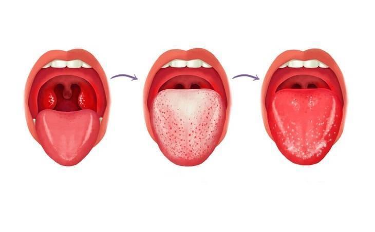 Черный налет на языке у ребенка и взрослых - причины и лечение