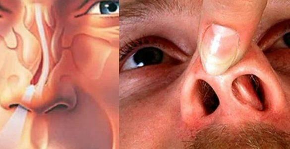 Боль в пазухах носа: признаки, причины, осложнения, терапия