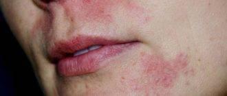 Периоральный дерматит: как выглядит, симптомы