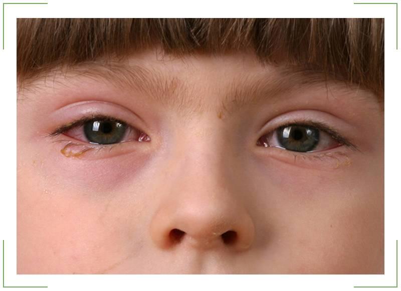капли от аллергического коньюктивита для детей