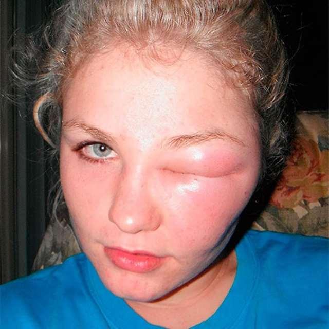 Если в глаз укусила мошка, чем быстро снять отек?