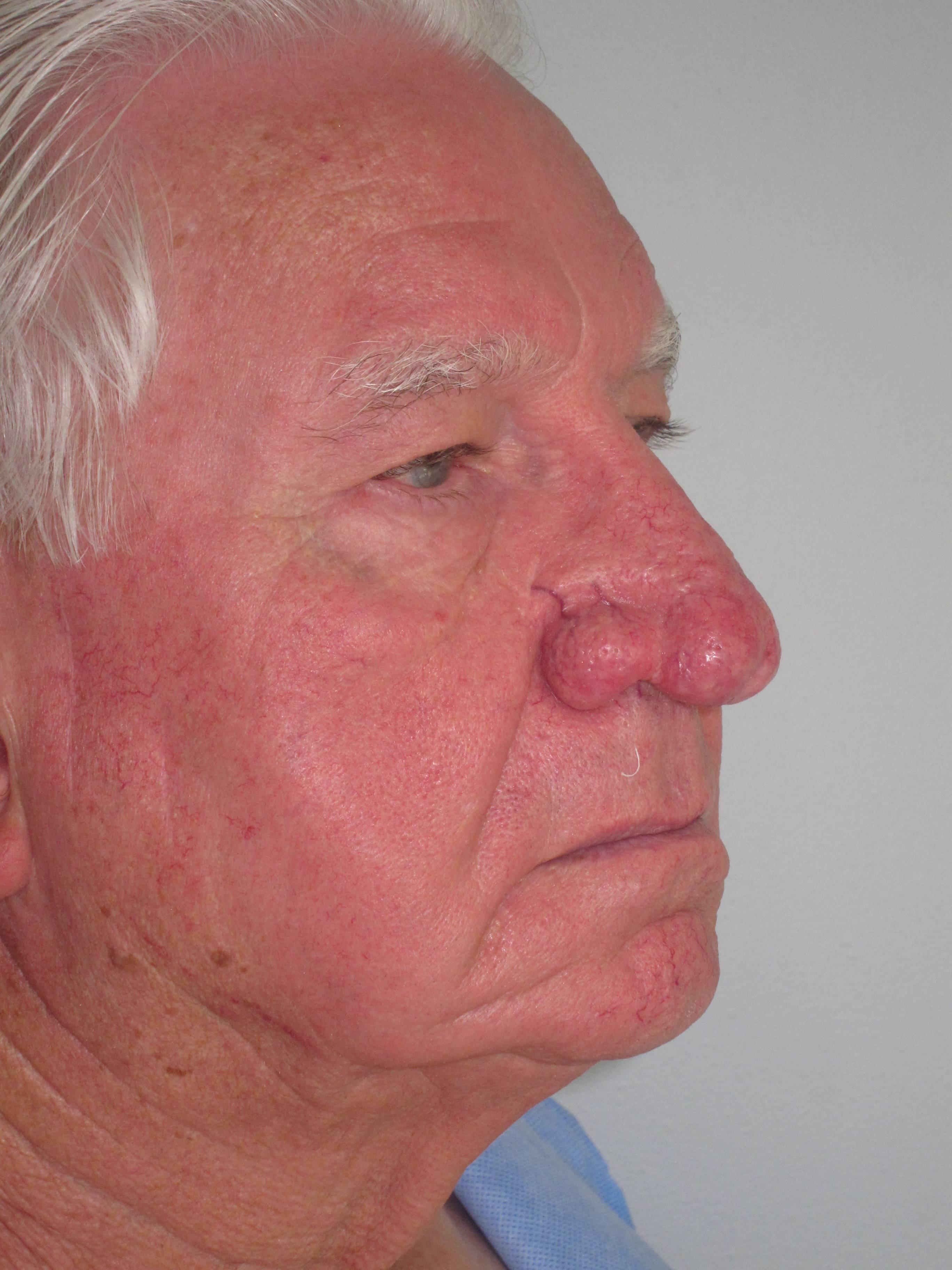 Рак носа: симптоматика и способы лечения