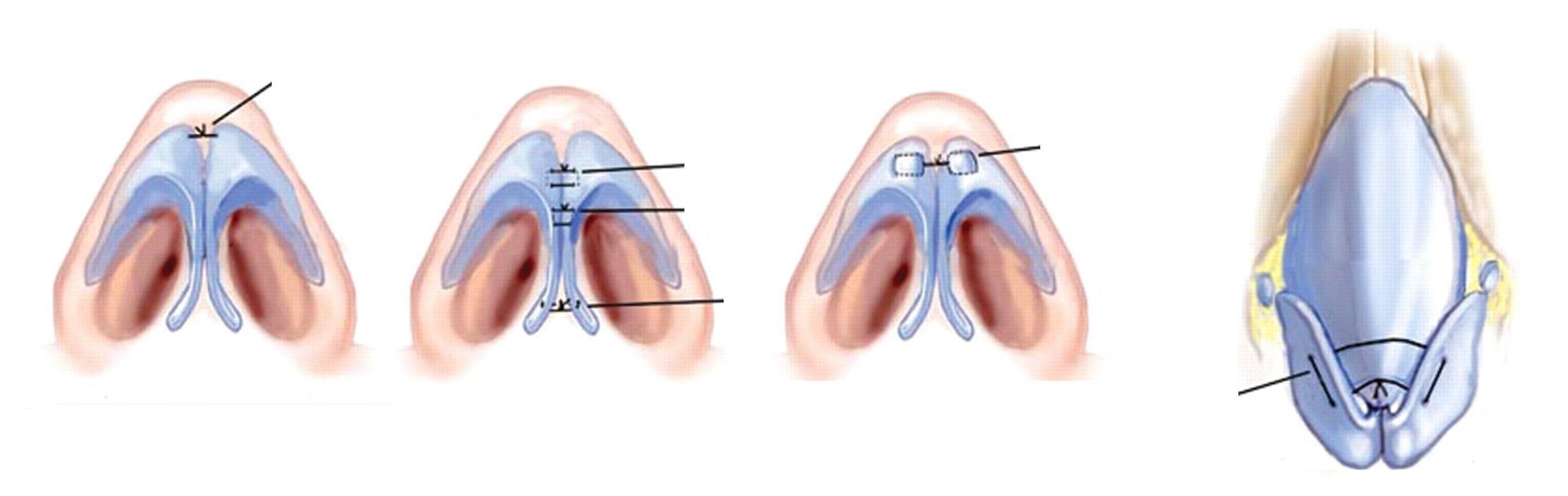 Спайки в носу после операции