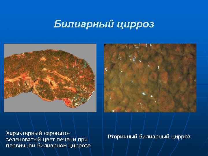 первичный билиарный цирроз печени симптомы