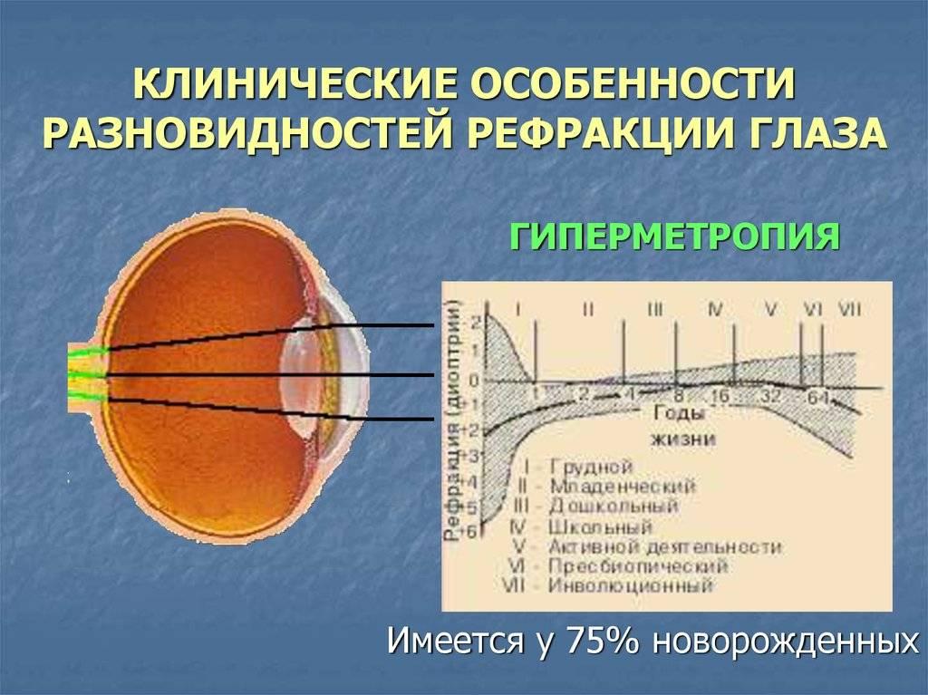 что определяет физическую рефракцию глаза