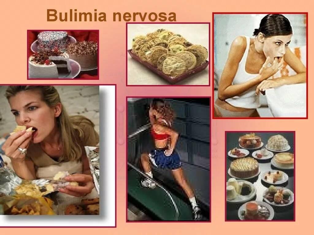 Булимия. причины, симптомы, диагностика и лечение болезни