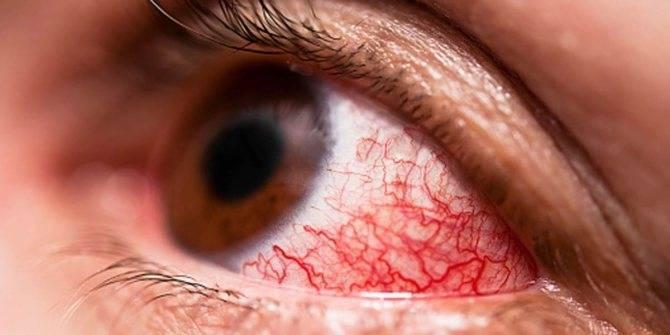 капли для глаз при аллергическом коньюктивите