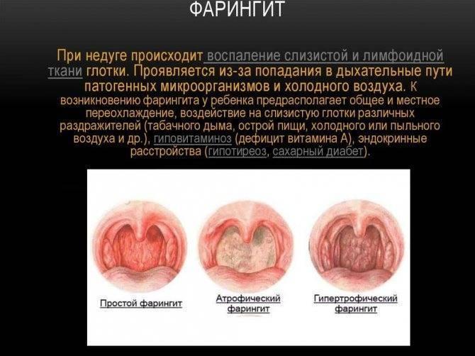 Лакунарная ангина сколько дней заразна