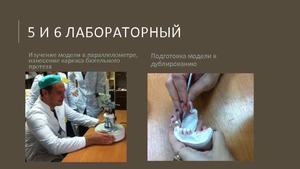 Бюгельный протез: состав, разновидности, этапы изготовления