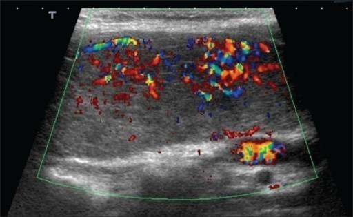 Неоднородная щитовидная железа лечение