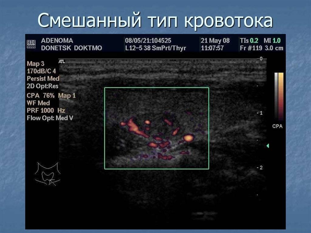 У ребенка усиленный кровоток в щитовидной железе | про щитовидку
