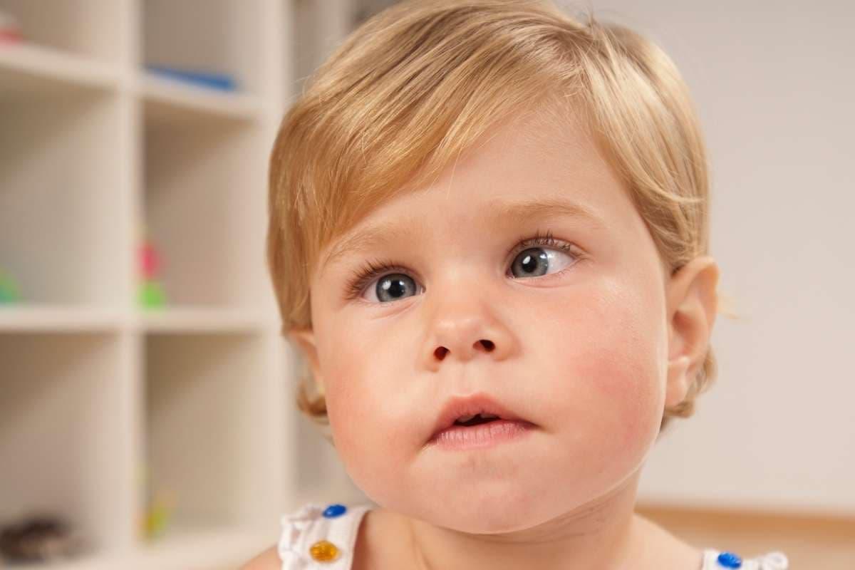 Почему косоглазие у новорожденных является нормой?