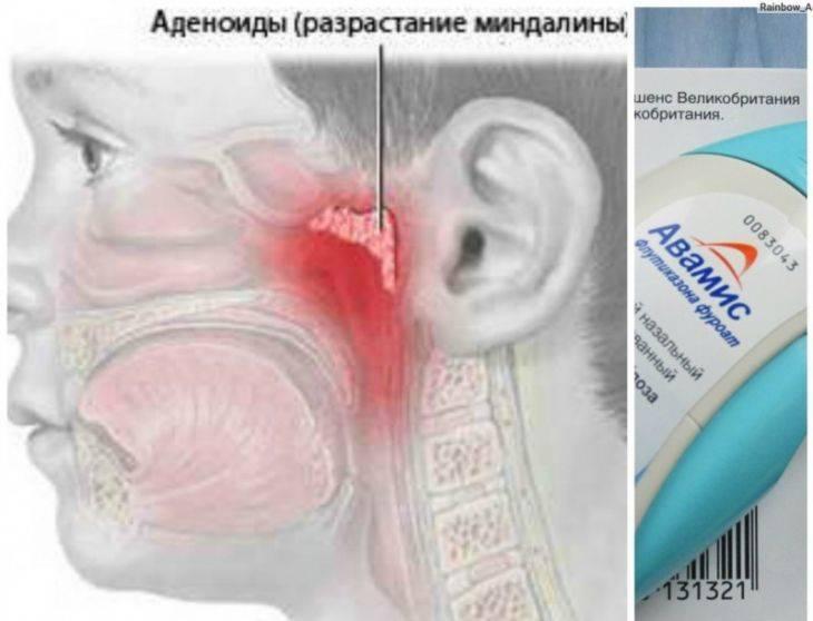 Диагноз - аденоиды