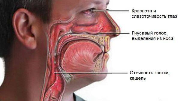 болит носоглотка при глотании