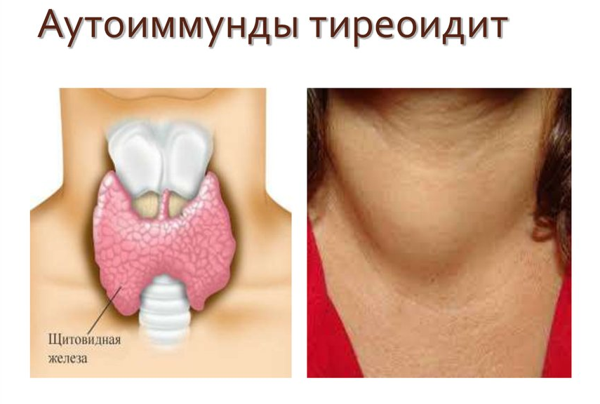 заболевания щитовидной железы тиреоидит