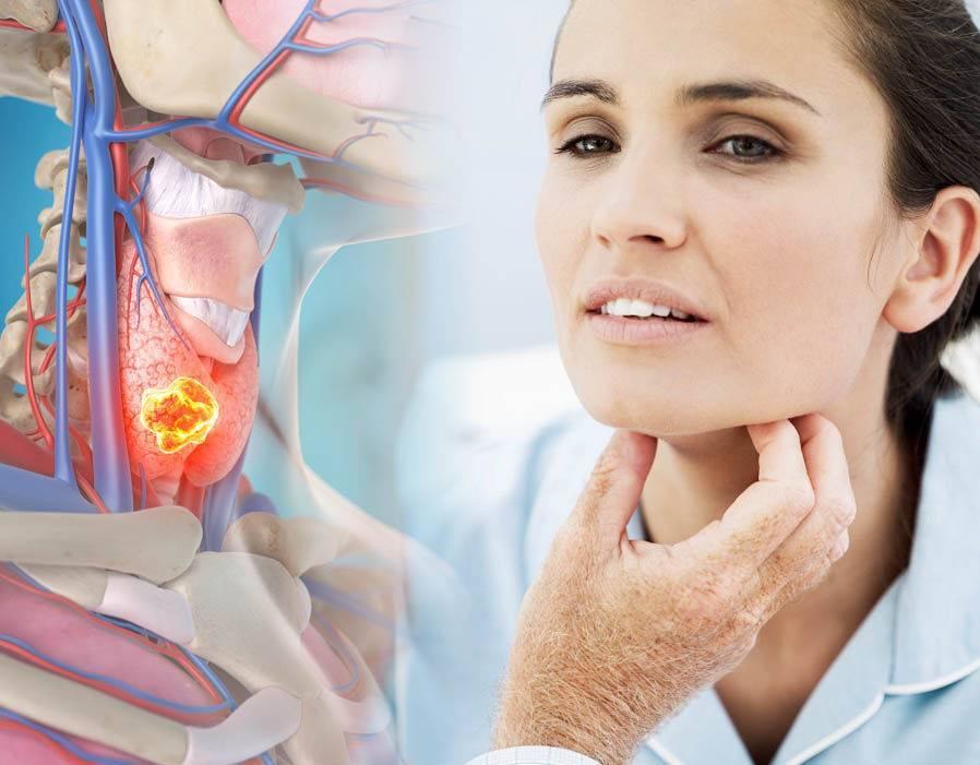 Сухость в горле: почему появляется, связь с болезнями, как лечить