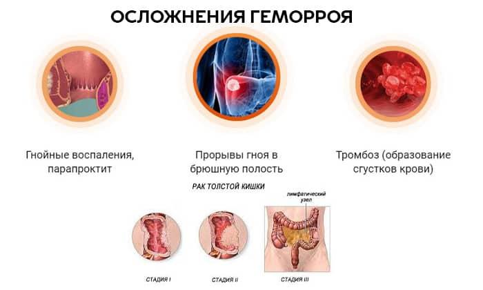 хронический геморрой 2 степени лечение
