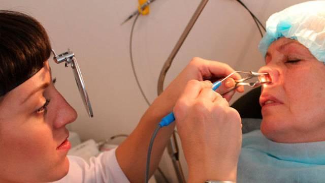 Лечение синусита в домашних условиях у взрослых и детей