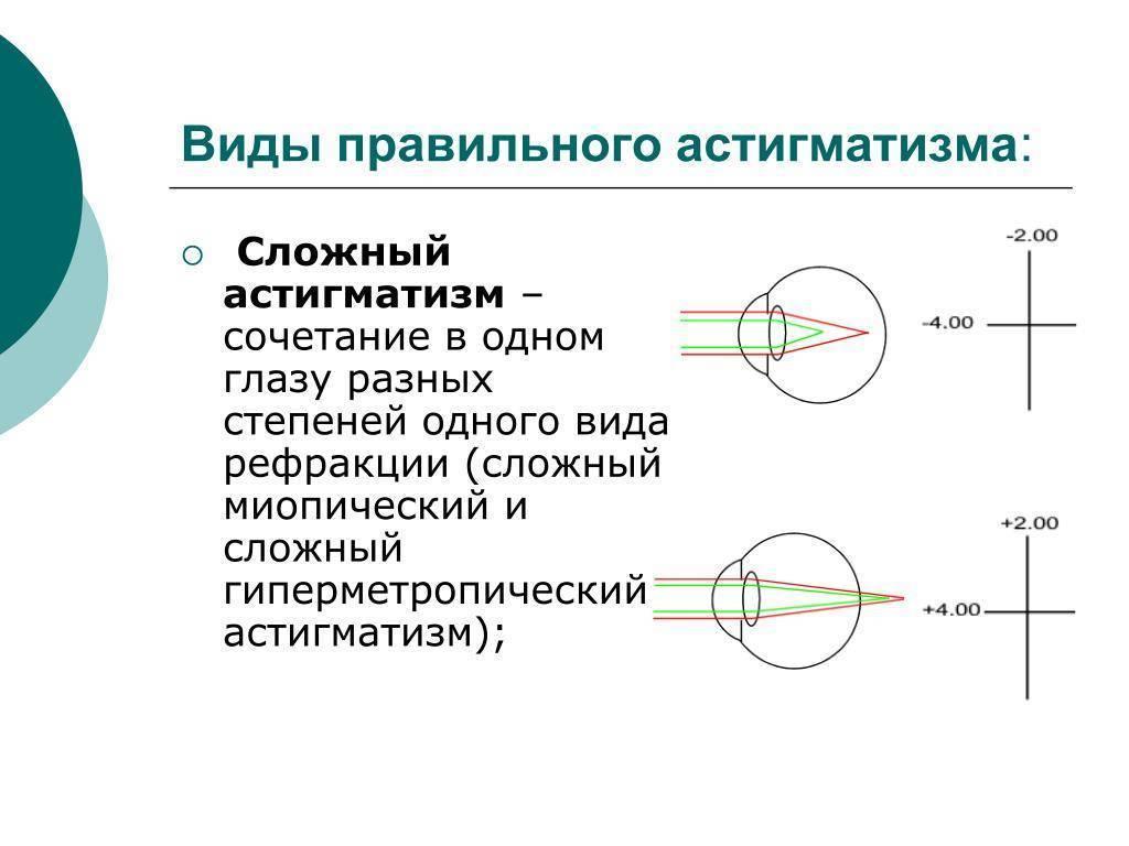 гиперметропический астигматизм с каким знаком