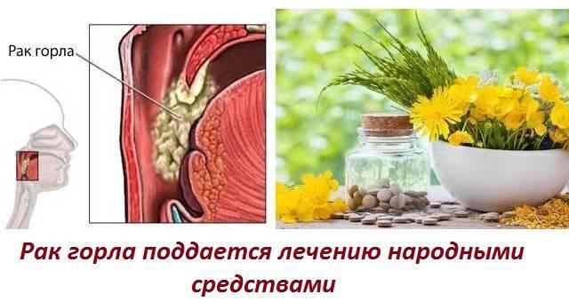 лечится ли рак горла