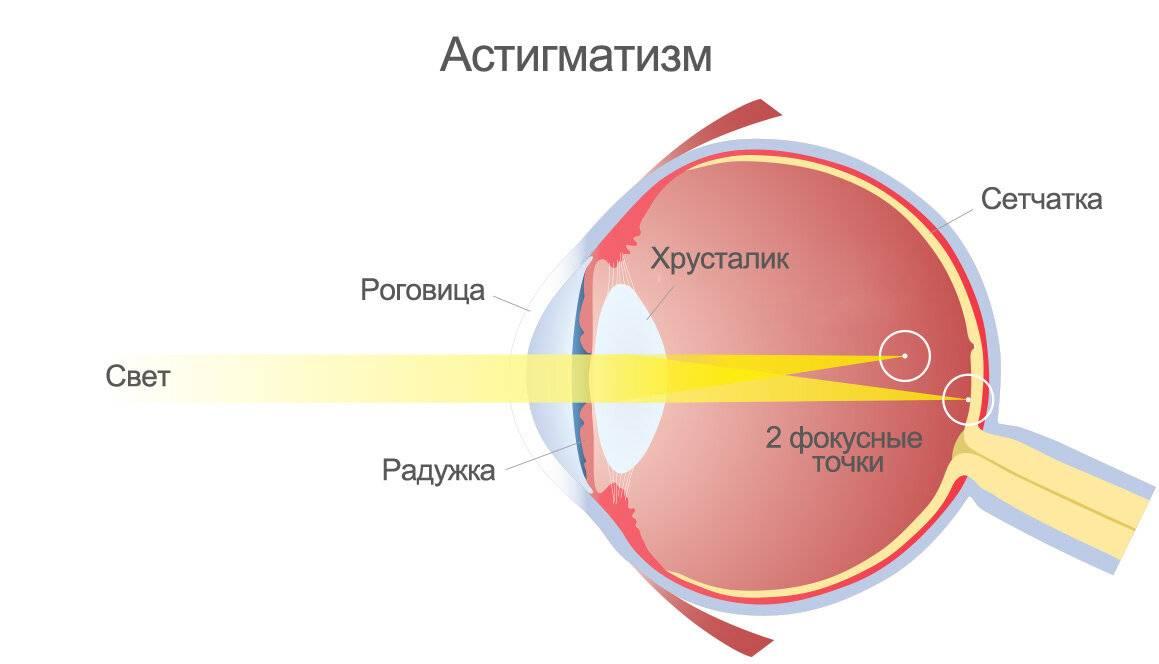 сложный дальнозоркий астигматизм