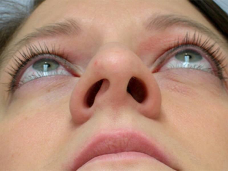 Искривленная носовая перегородка: как определить и можно ли исправить?