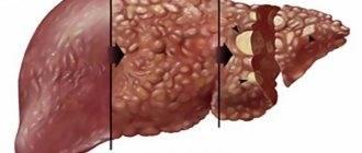 декомпенсация цирроза печени что это