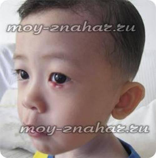 ячмень на глазу у ребенка комаровский