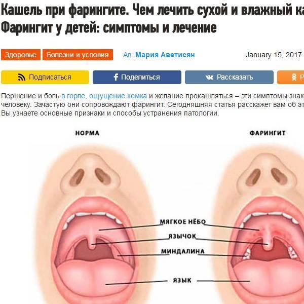Ангина и сильный кашель у взрослого