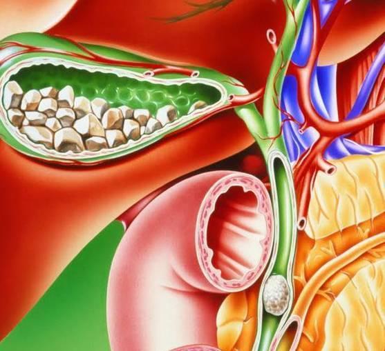Желчнокаменная болезнь или холелитиаз: стадии, симптомы, методы лечения болезни