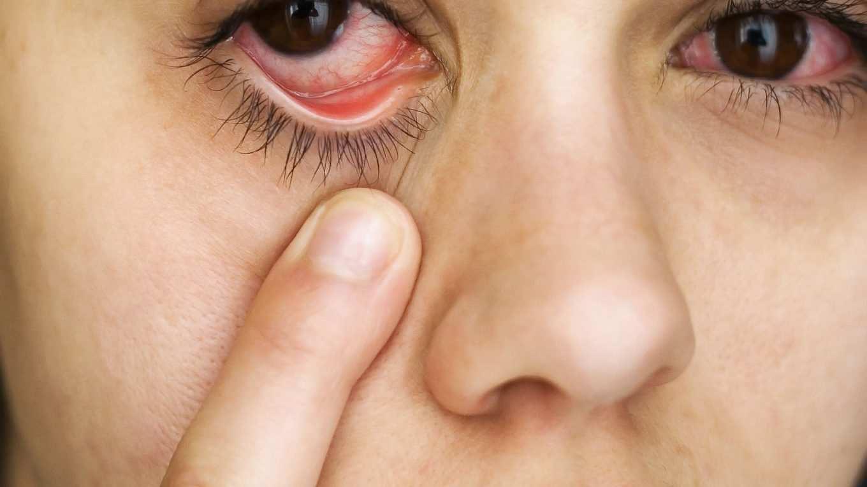 Заболевания глаз у детей - лечение, фото, названия