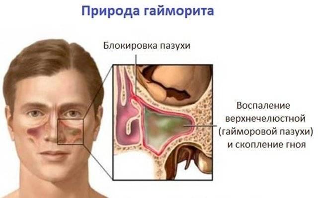 Признаки и лечение экссудативного гайморита