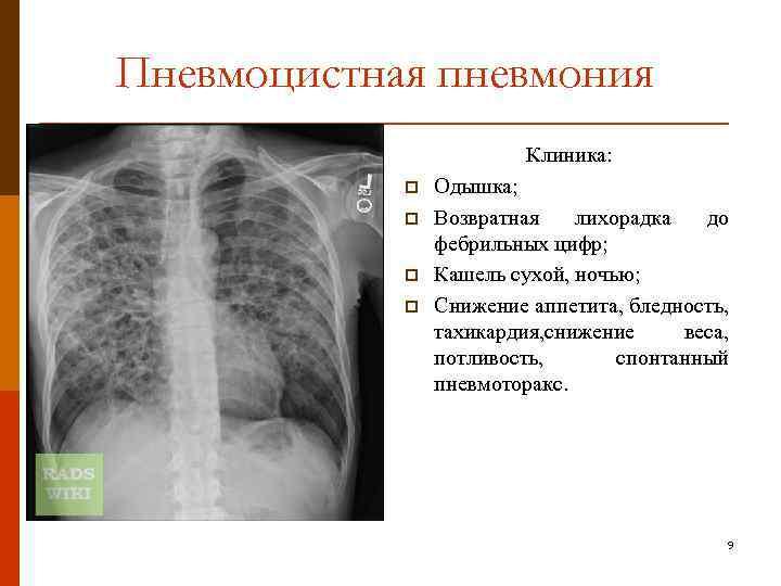 Пневмоцистная пневмония – симптомы, лечение