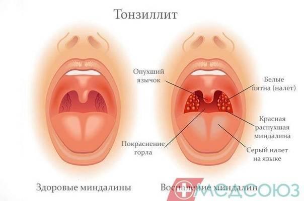 ангина без антибиотиков комаровский