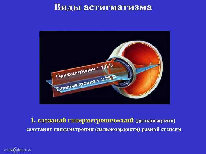 гиперметропия средней степени с астигматизмом