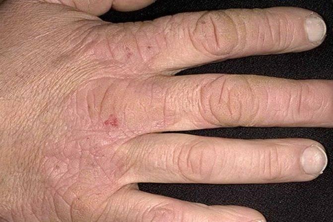 мазь от псориаза на руках