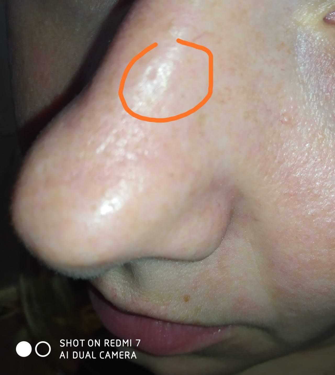 Почему болит нос внутри? причины, опасные признаки и методы лечения — симптомы