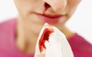 причины носового кровотечения у пожилых людей
