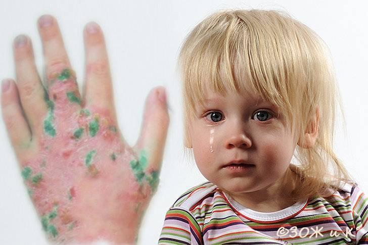 дерматит у детей 4 лет
