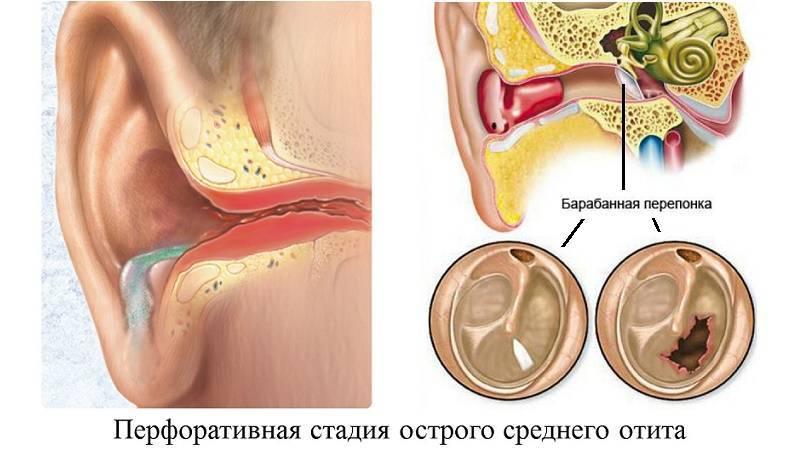 Течет из уха: причины, виды и характер выделений, диагностика, лечение