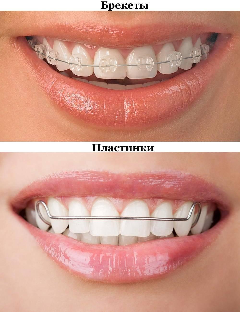 Что лучше брекеты или пластины — чем отличаются зубные конструкции