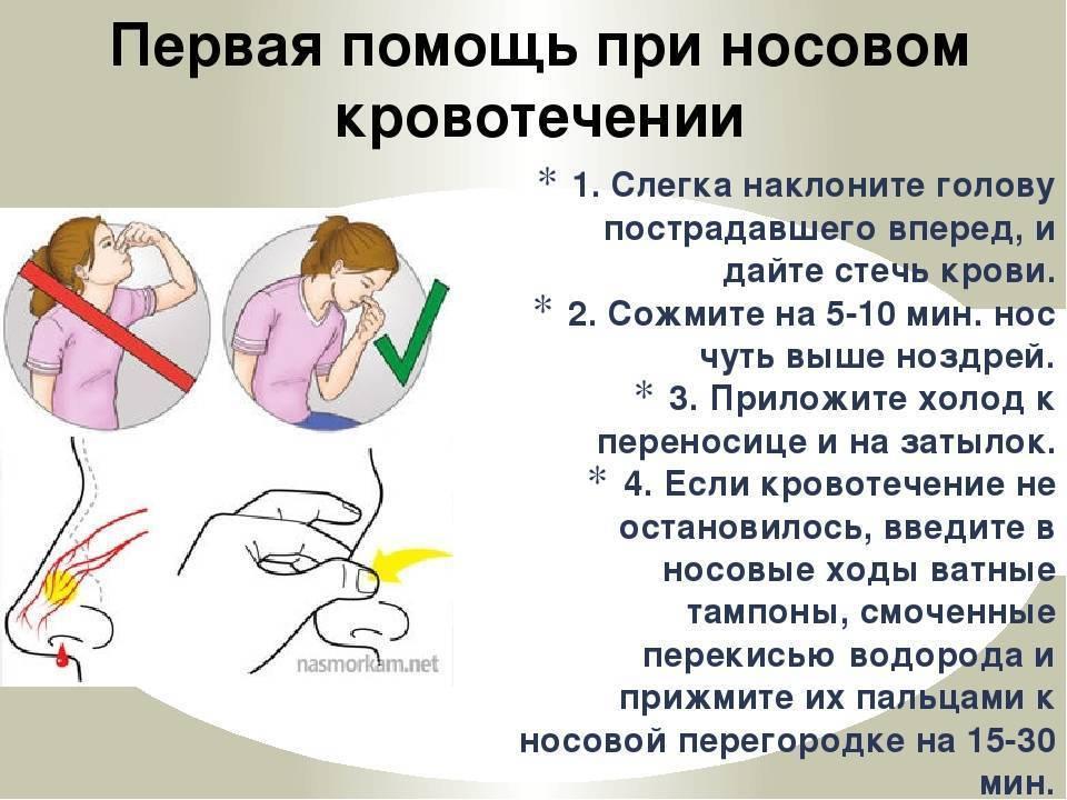 Почему может идти кровь из носа у пожилой женщины