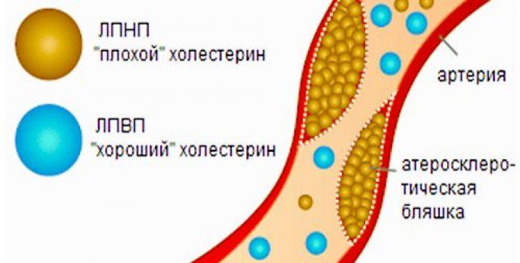 как вывести вредный холестерин