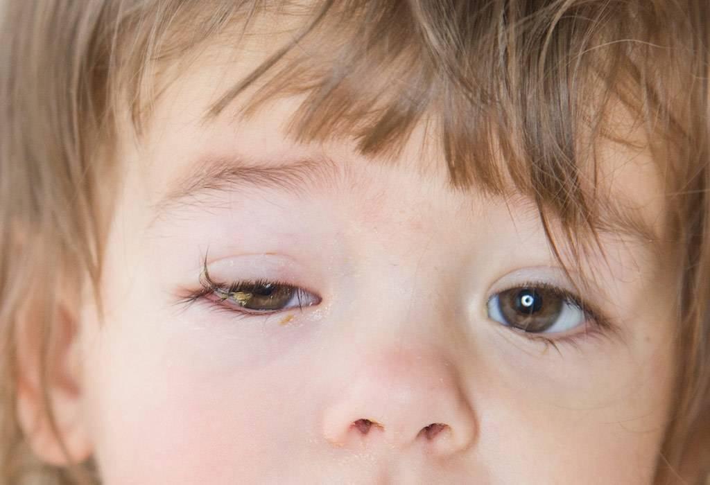 воспаление глаза у ребенка лечение