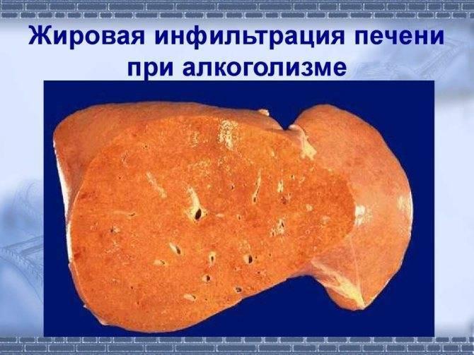 Диффузные изменения паренхимы печени по типу гепатоза
