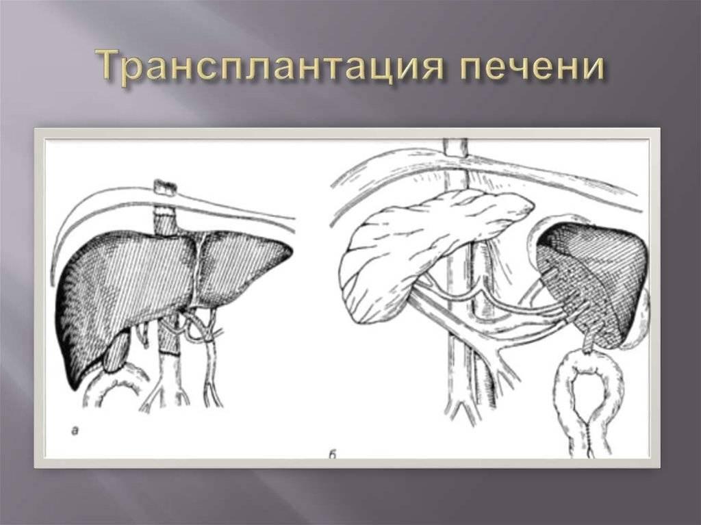 Пересадка печени при циррозе: показания, противопоказания, послеоперационный период