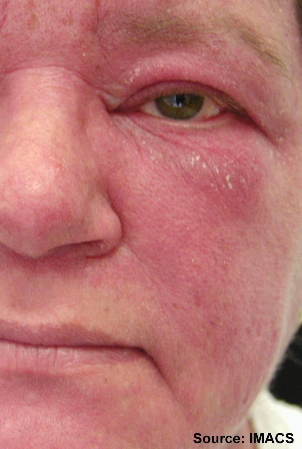 себорейный дерматит лица лечение