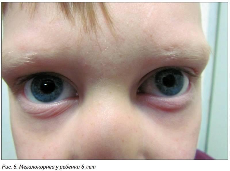 Врожденная глаукома у детей: фото, причины, симптомы, классификация